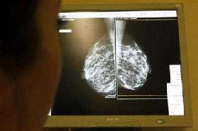 <!--:es-->Hormones raise breast cancer risk quickly<!--:-->