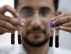 <!--:es-->Un Cuarto de Siglo de SIDA …A 25 años de descubrirse, el sida aún no tiene cura<!--:-->