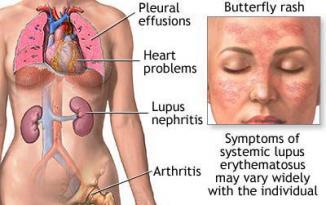 <!--:es-->New lupus drug may end nightmare for some …Enfermedad autoinmune lupus tiene nuevo tratamiento<!--:-->