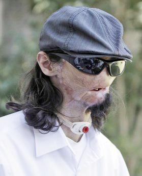 <!--:es-->Texas man gets first full face transplant in US<!--:-->