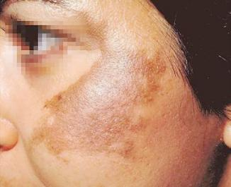 <!--:es-->Melasma o Paño …Además de afectar la salud también es un problema cosmético!<!--:-->