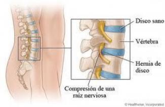 <!--:es-->Una nueva técnica para disminuir el dolor crónico de los nervios<!--:-->