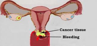 <!--:es-->Las Latinas necesitan exámenes de cáncer cervical regularmente<!--:-->