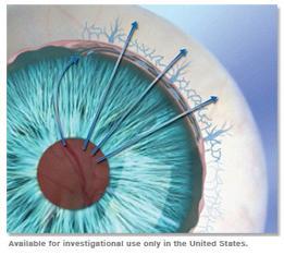 <!--:es-->Ultra-diminuto dispositivo de drenaje puede reemplazar medicamentos de gotas para los ojos en algunos pacientes con glaucoma<!--:-->