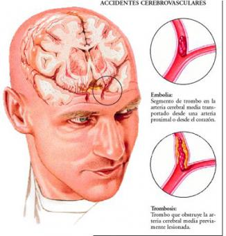 <!--:es-->La lesión cerebral vascular es un factor de riesgo mayor que las placas amiloides en el envejecimiento<!--:-->