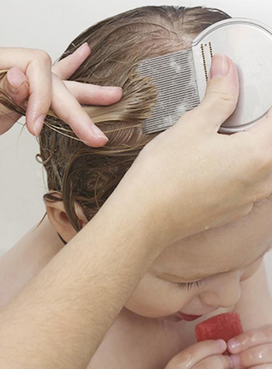<!--:es-->Un buen tratamiento contra los piojos de la cabeza …Bichos que son la pesadilla de cualquier padre.<!--:-->