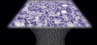 <!--:es-->Microscopio sin lente capaz de detectar cáncer a escala celular<!--:-->