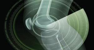 <!--:es-->Regeneran el menisco con un implante impreso en 3D<!--:-->