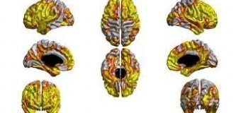 <!--:es-->Corteza cerebral anormalmente delgada en gente que ha fumado durante muchos años<!--:-->