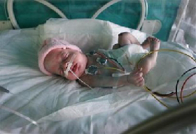 <!--:es-->Underweight infants at risk as teens: study<!--:-->