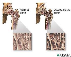 <!--:es-->La Osteoporosis: ¿Tiene sus huesos sanos?<!--:-->