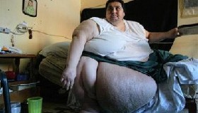 <!--:es-->Man weighing 1,200 pounds seeks life-saving surgery<!--:-->