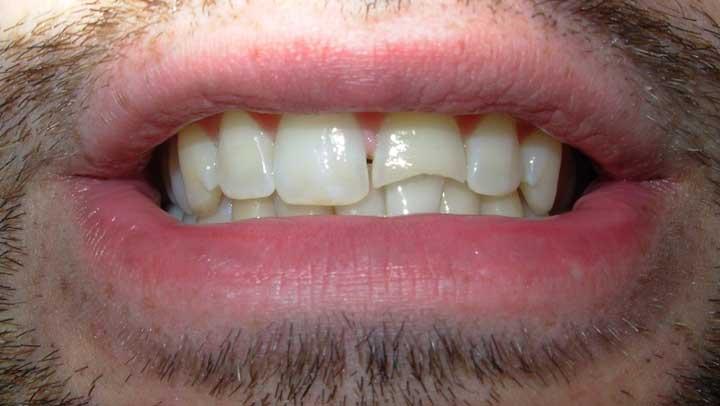 Tratamiento para Regenerar los dientes  de las caries más profundas