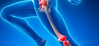 Este remedio para de una silla a cualquier persona con problemas en los huesos y  articulaciones