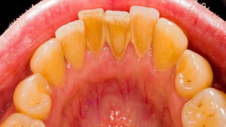 Fabuloso remedio que te  ayuda a remover el sarro de los dientes sin ir al dentista