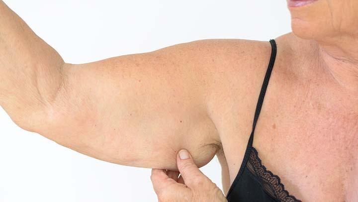 Esto es lo que debes hacer para eliminar la piel colgante de tus brazos