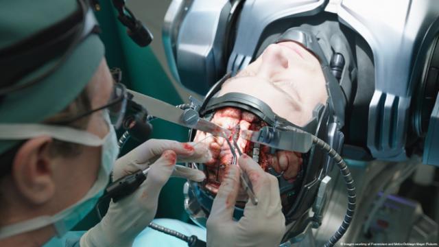 ¿Se implantaría un chip en el cerebro?