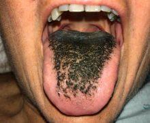 ¿En qué  consiste la extraña condición  de la lengua 'peluda'?
