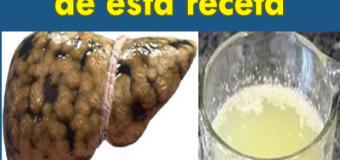 Cómo limpiar tu hígado graso y dejarlo como nuevo tomando un vaso de esta receta