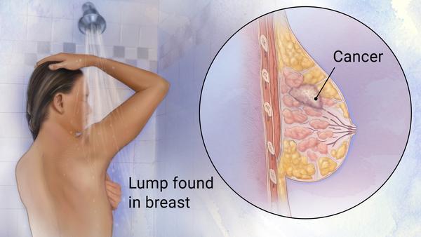 El cóctel que podría detener la metástasis del cáncer!
